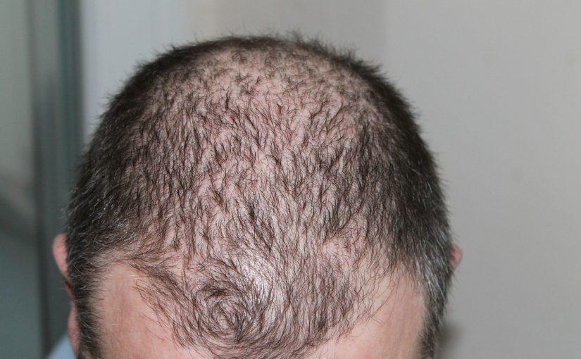 Haarausfall ab 40 – Schicksal oder gibt es Mittel dagegen?